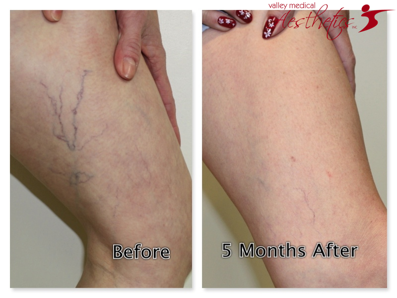 sclerotherapy gallery