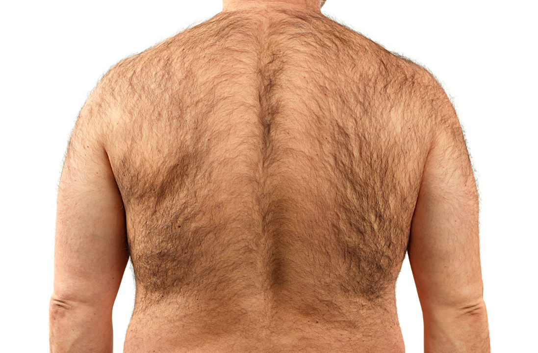 Hairy Man Back